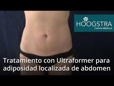 Tratamiento con Ultraformer para adiposidad localizada en abdomen (17137)