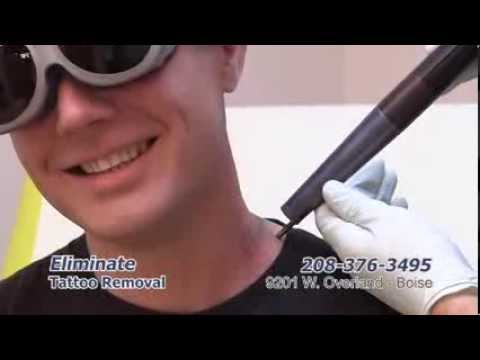 Eliminate Tattoo Removal 9201 W. Overland Boise, ID   208-376-3495