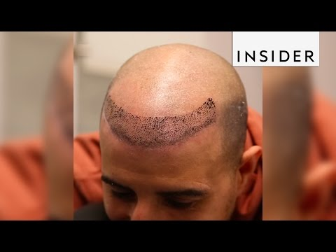 Scalp micropigmentation is a nonsurgical hair loss treatment