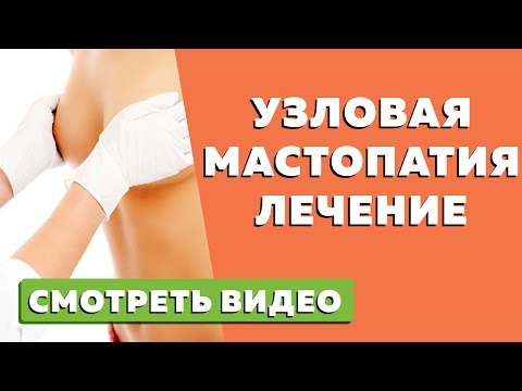 Узловая мастопатия - лечение
