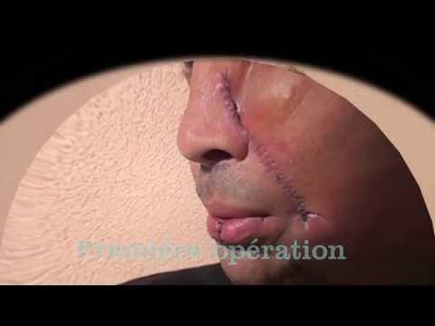 CAPBRETON Un homme d'un courage à toute épreuve a été opéré d'un cancer de la mâchoire