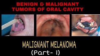 Melanoma - Overview (signs and symptoms, pathology, risk factors, treatment).