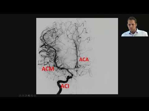 Ivan Jovanović - Radiološki markeri bolesti malih krvnih žila mozga