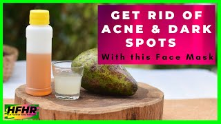 Get rid of Acne dark spots and look younger with this Face Mask I Hair Fashion Home Remedies