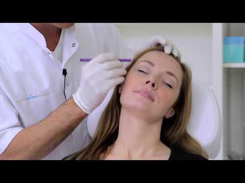 Botox behandeling Amsterdam