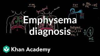 Emphysema diagnosis | Respiratory system diseases | NCLEX-RN | Khan Academy