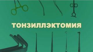 видео Тонзиллэктомия