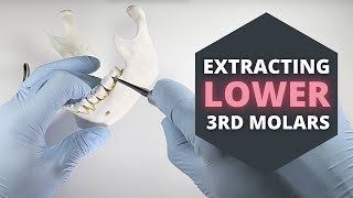 How To Extract Eruṗted Lower Third Molars | OnlineExodontia.com