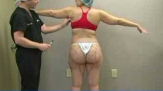 Liposuction Procedure with Dr. William Hall - Arms