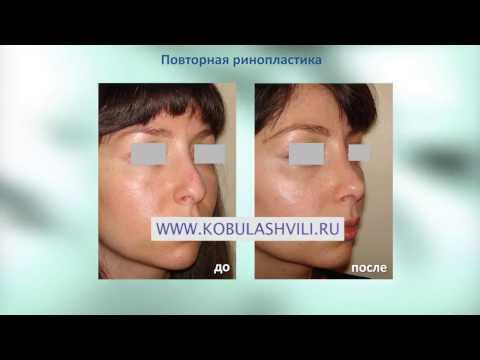 Ринопластика фото до и после пластики носа Фотогалерея