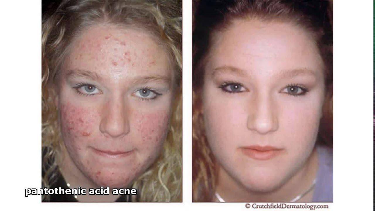 Pantothenic acid mot finnar
