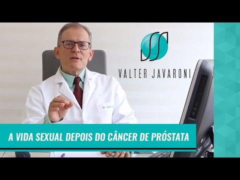 cie 10 cancer de prostata