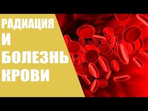 Радиация и болезнь крови