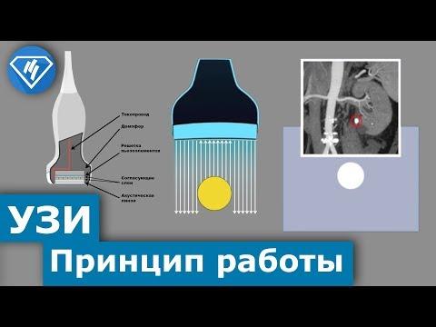 Принцип работы ультразвукового аппарата. Пьезокерамика.