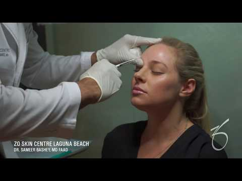 Botox for Forehead at ZO Skin Centre Laguna Beach