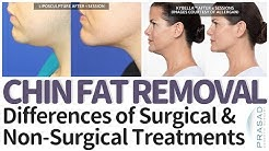 Double Chin Treatment - Pros and Cons of Surgical and Non-Surgical Solutions
