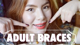 ADULT BRACES, Overbite! Experience & Q+A