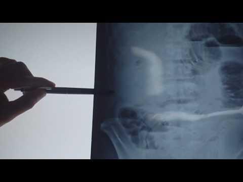 Đường sáng lớp mỡ tiền phúc mạc trên x-quang bụng.MP4