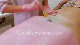 Female Bikini procedure Sugaring paste professional use only!