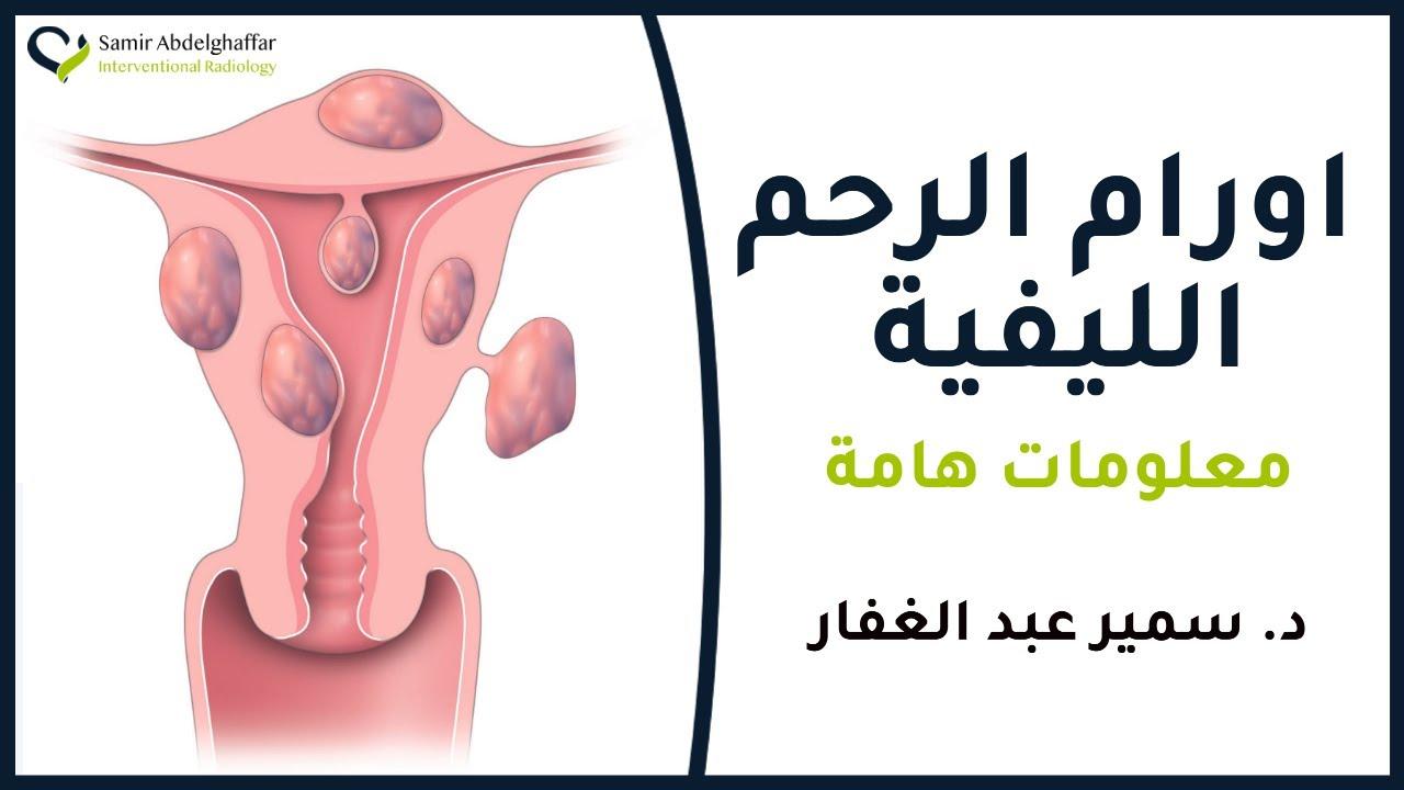 الورم الليفي في الرحم ما هي الياف او تليف الرحم 2018 Youtube