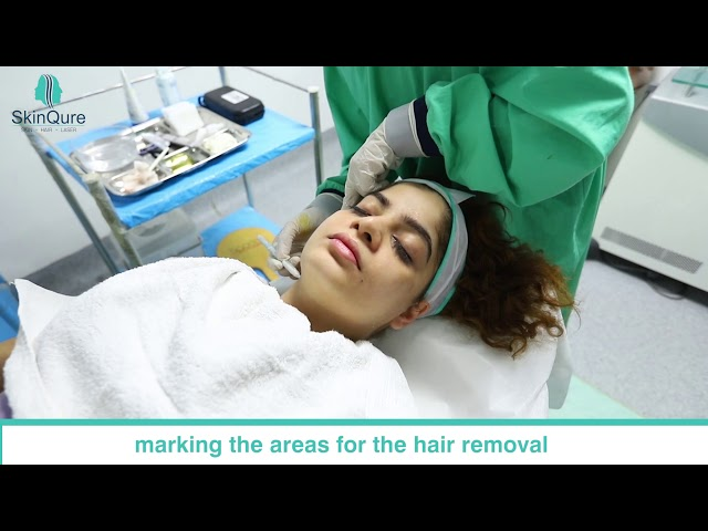 Facial Laser Hair Removal @SkinQure Clinic, Saket by Dr. Jangid |  Review by Prachi Kapoor