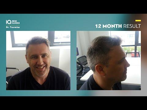 FUE Μεταμόσχευση Μαλλιών   Η εμπειρία του Jason Gow στην IQ Skin Clinics
