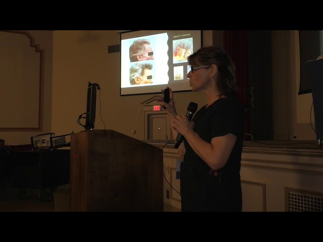 Dallas Hair Transplant Surgeon Coordinator Emina Vance Lectures on What Went Wrong