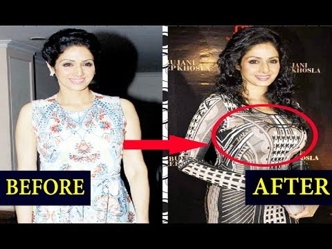 Top 8 Bollywood Actress Who Got Silicon Implants   Before And After