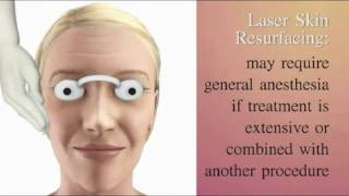 Laser Resurfacing Patient Education Thumbnail