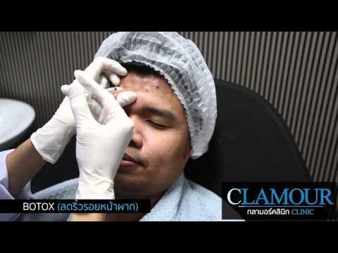 Preview BOTOX ลดริ้วรอยหน้าผาก // Clamour clinic
