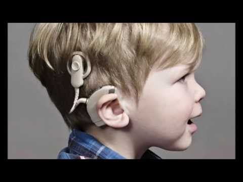 What sound is like through a Cochlear Implant