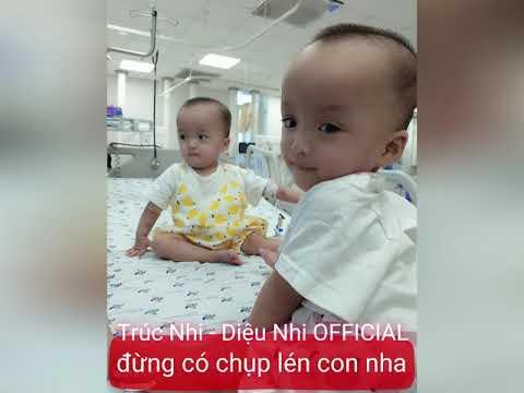 Trúc Nhi – Diệu Nhi sau 2 cuộc phẫu thuật sức khỏe tiến triển tốt và dần bình phục.