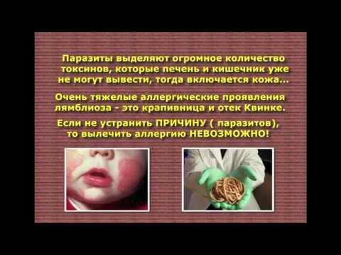 Аскаридоз - симптомы болезни, профилактика и лечение