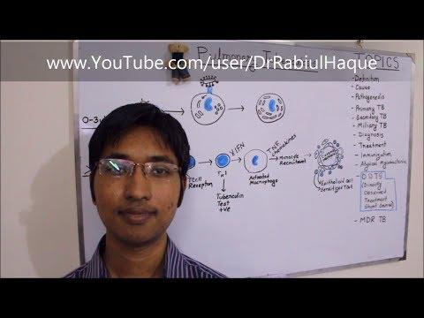 Pulmonary Tuberculosis (HD)