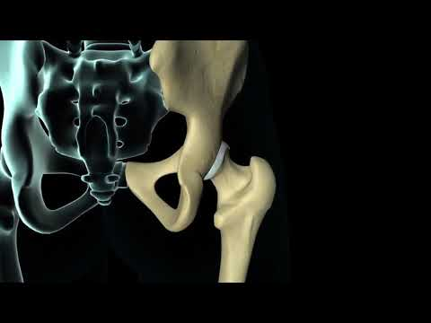 total-hip-replacement-surgery