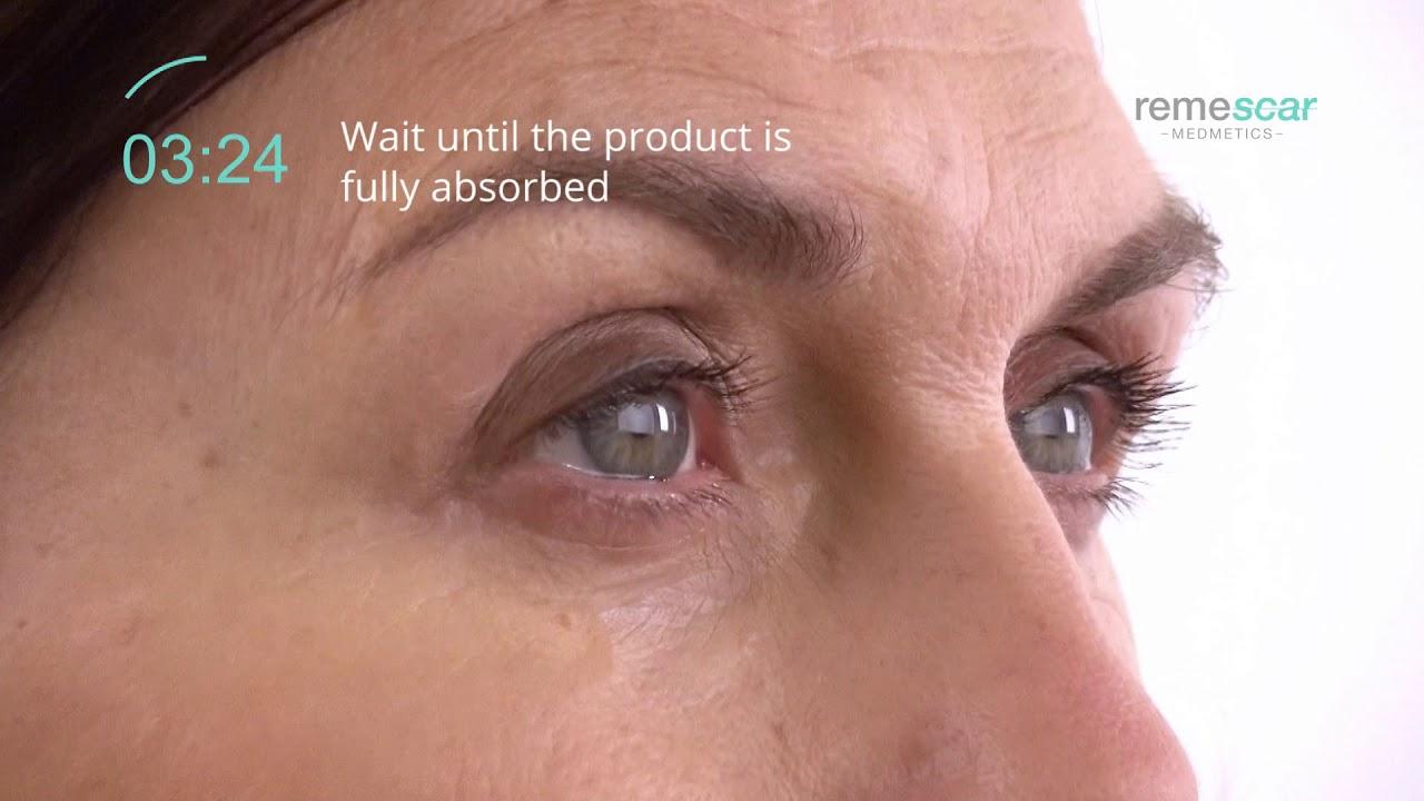 Vasele varicoase ale ochilor: cum să recunoașteți simptomele periculoase