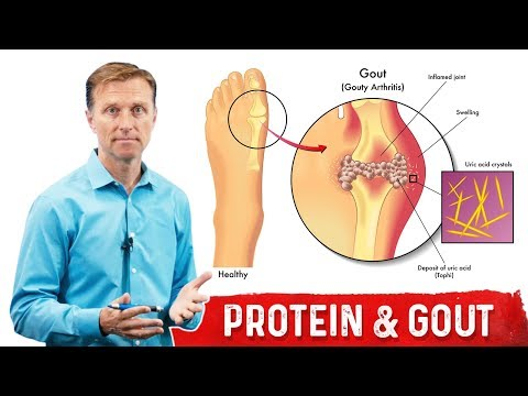 Why Dietary Proteins Does NOT Cause Gout