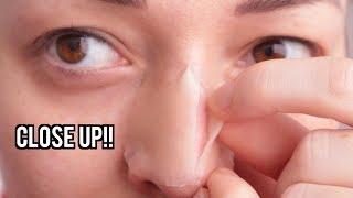 MEGA puistjes patch als NEUSSTRIP testen! | Beautygloss