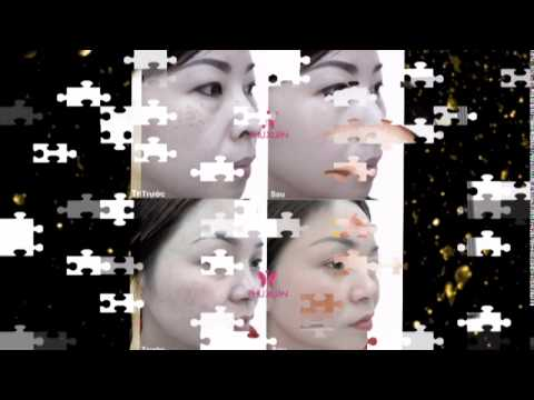 Điều trị tàn nhang trên mặt tận gốc - Phương pháp xóa tàn nhang vĩnh viễn