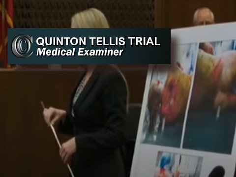 👩‍⚕️ Jessica Chambers Trial-MEDICAL EXAMINER (Includes Autopsy Pics)-(Day 3)