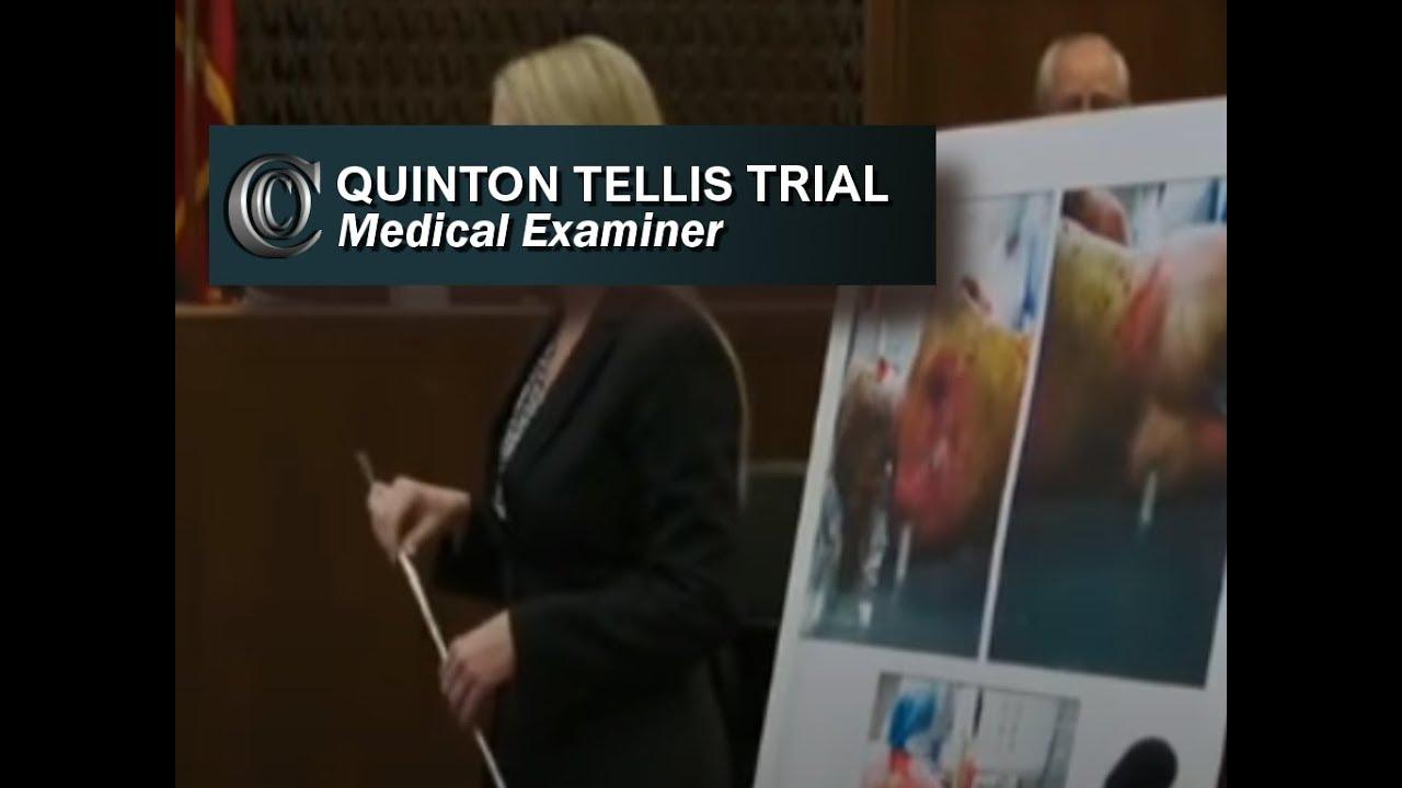QUINTON TELLIS TRIAL - 👩 ⚕ Medical Examiner (2017) - YouTube