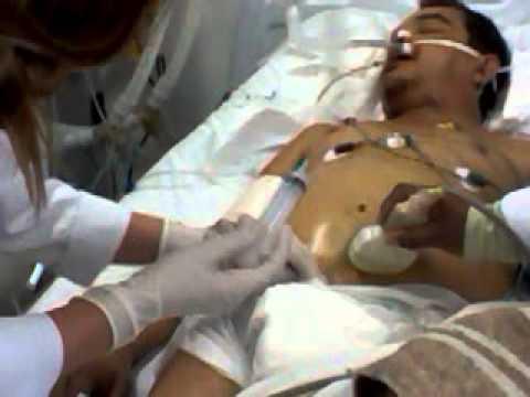 paracentese guiada por ultra-som