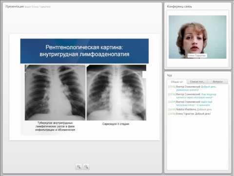 Дифференциальная диагностика туберкулеза у взрослых