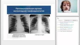 видео Диагностика туберкулеза