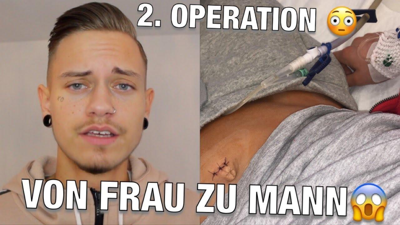 Von Frau Zu Mann Meine 2 Operation