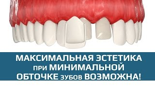 Виниры. Этапы установки виниров.(Виниры - накладки переднюю часть зубов для достижения эстетического эффекта при минимальной обточке зуба...., 2015-10-07T23:46:39.000Z)