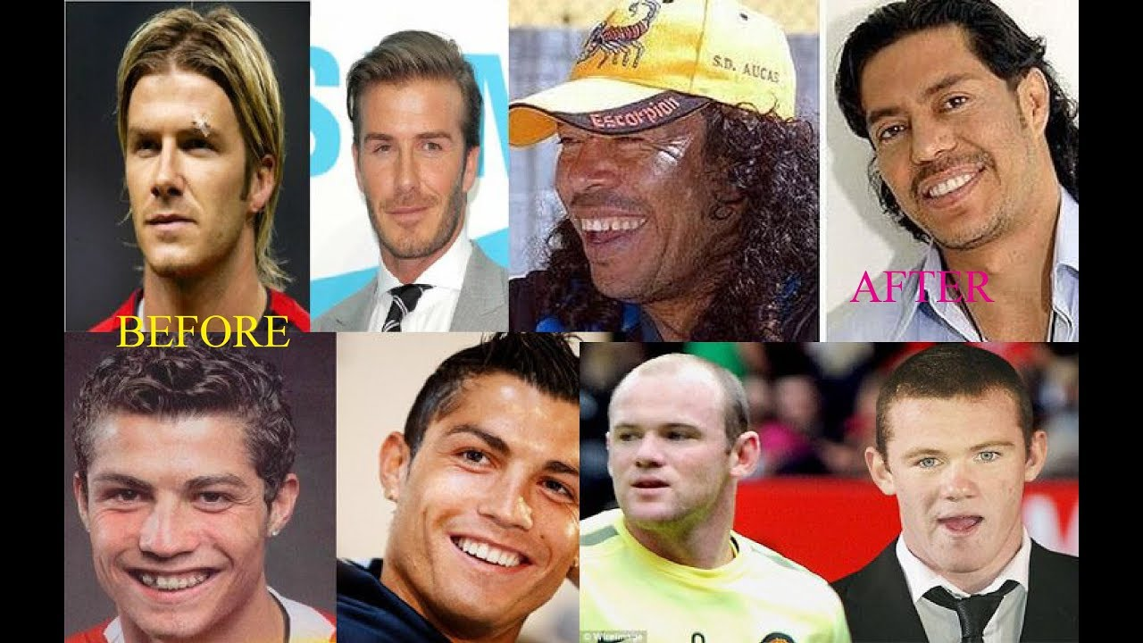 Famous football player Cristiano Ronaldo: before and after plastic surgery