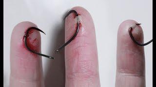 Putting Fishhooks Through My Fingers