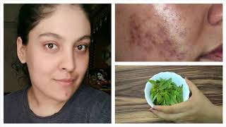 Neem Clears Acne Scars And Pigmentation- How To Use And Apply At Home