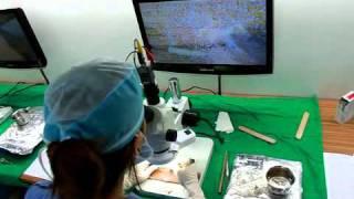 디지털 영상현미경 모낭분리작업